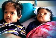 Photo of Separated Conjoined Twin Kalia Dies